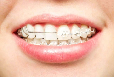 Your La Costa Dental Provider Examines Whether a Retainer Can be a Replacement for Braces