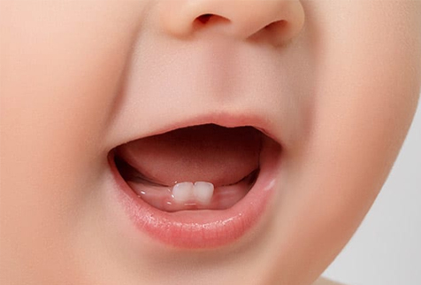 Tips from Your Carlsbad Dentist that Will Keep Your Child's Baby Teeth Free of Cavities